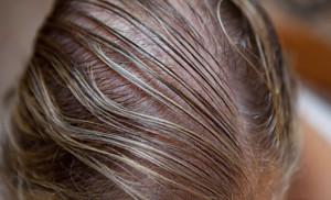 Thinning Hair Renew